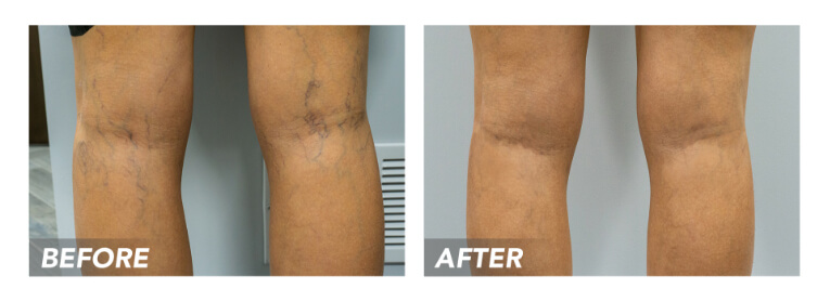 """The internet is often the first place we go to look for answers, especially when it comes to our health. If you are looking for ways to get rid of your spider veins or varicose veins, Dr. Google probably recommended a litany of at-home remedies, but none of them really did the trick. Dr. Let's dig deeper into some of the most common """"remedies"""" floating around on the web to understand why they didn't help and how they can actually make your conditions worse. H2: Essential Oils Essential oils have risen in popularity and accessibility, as they are extremely versatile. They can help with aromatherapy, cuts and scrapes, cleaning, and can alleviate some of the pain and discomfort associated with spider veins and varicose veins. However, this is only a temporary effect, and some experts believe this relief may even be due to the placebo effect. Although they may seem harmless and all-natural, they can sometimes do more harm than good because of their potency and concentration. The skin around varicose veins is quite thin and tender, so using essential oils in high concentrations on these fragile areas can lead to many symptoms of allergic reactions, including rashes, irritation, skin inflammation, hives, and shortness of breath. H2: Apple Cider Vinegar and Witch Hazel In the last decade, apple cider vinegar, also known as ACV, has made waves in holistic health for being nature's cure for almost anything, including pain, swelling, digestive blocks, and metabolic issues. There is no proven research showing that apple cider vinegar can treat varicose veins, but there are many unfounded claims that dipping gauze in apple cider vinegar and putting it on the veins can help the swelling go down. However, there is no known benefit to applying ACV to the skin. Another popular natural remedy is witch hazel, a yellow-flowered shrub that is said to decrease inflammation or strengthen blood vessels, which theoretically would help heal spider veins or varicose veins. But witch hazel, s"""