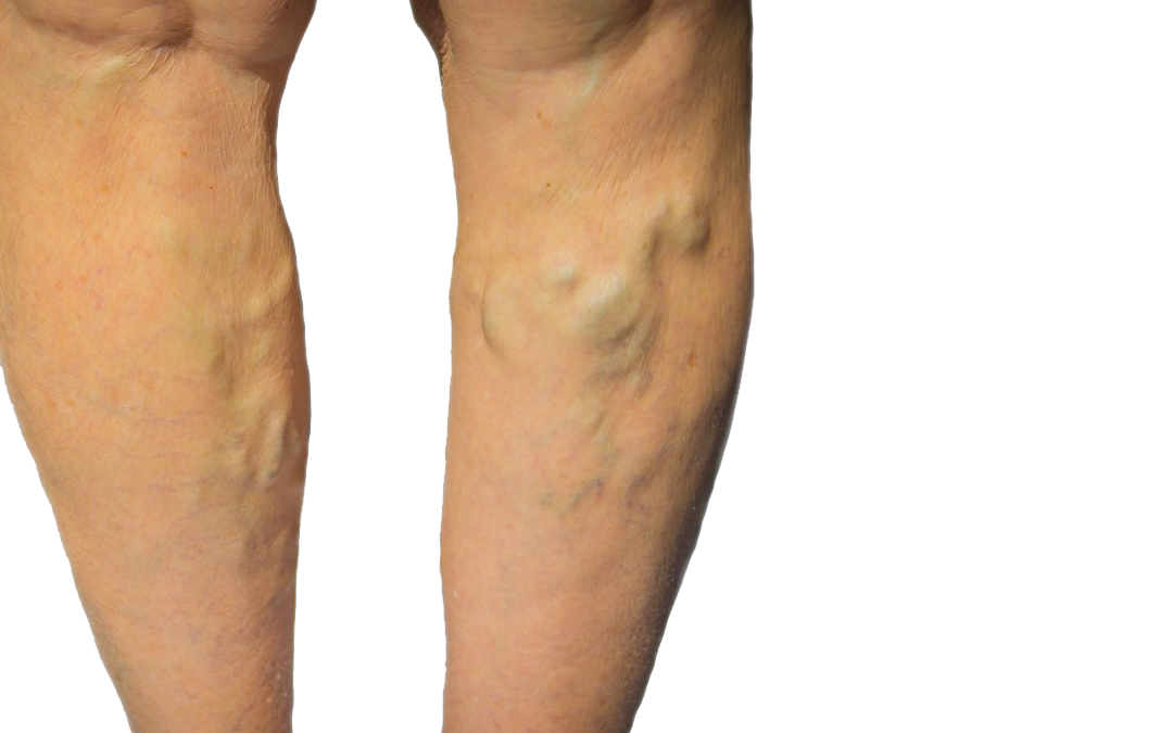 What Are the Methods in the Process for Vein Treatment NYC If I Have Spider Veins and Venous Insufficiency?
