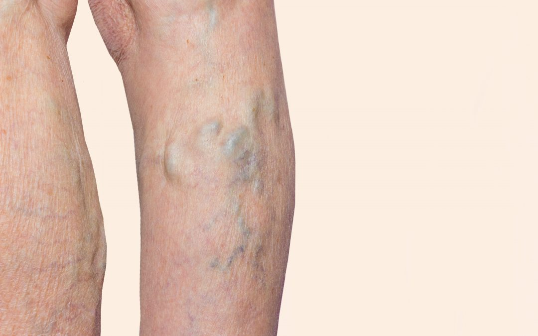 6 Steps to Vein Treatment at a Vein Clinic near Me in NY