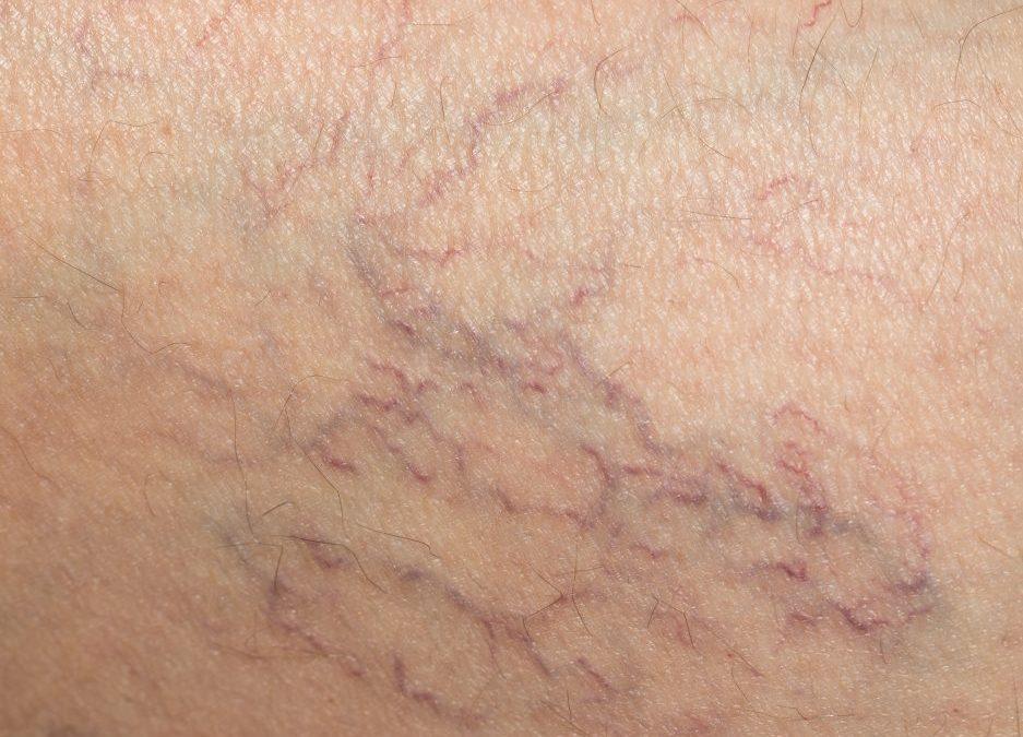 5 Dangers of Vein Disease from Vein Doctor Near Me NYC