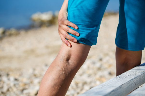 You probably know what varicose veins look like. But do you know who treats them? Here, we define how each type of varicose vein doctor in Manhattan treats veins.