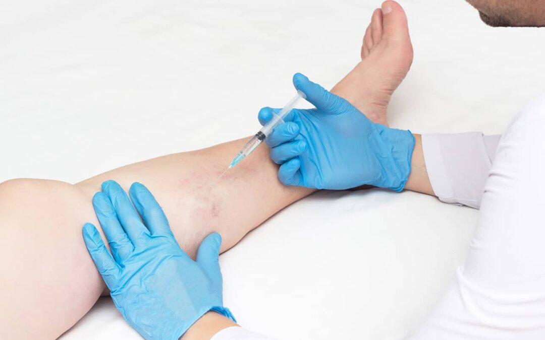 4 Questions to Ask a Vein Center Near NY Before Treatment