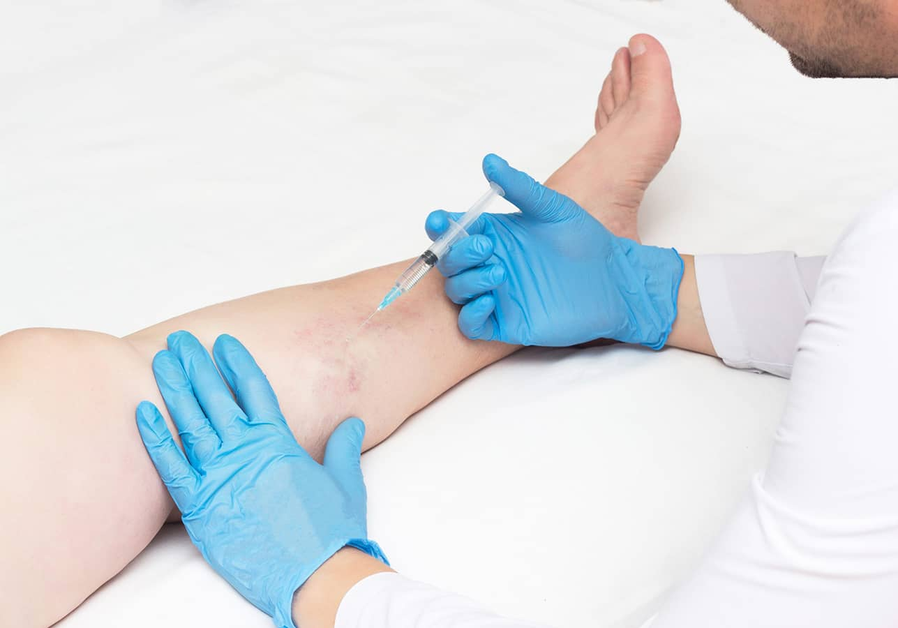 """Looking for the best """"vein center near me in New York?"""" Our renowned vein clinic enhances several aspects of life. Here are 7 ways we improve your wellbeing."""